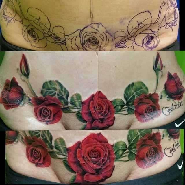Tummy tuck tattoo hides the scar on 100 percent tasteful for Tattoo tip percentage