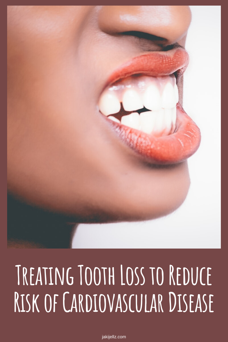 Treating Tooth Loss to Reduce Risk of Cardiovascular