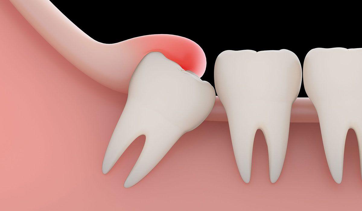 كيف يتم خلع ضرس العقل Dentes Do Siso Implantes Dentarios Dente Siso