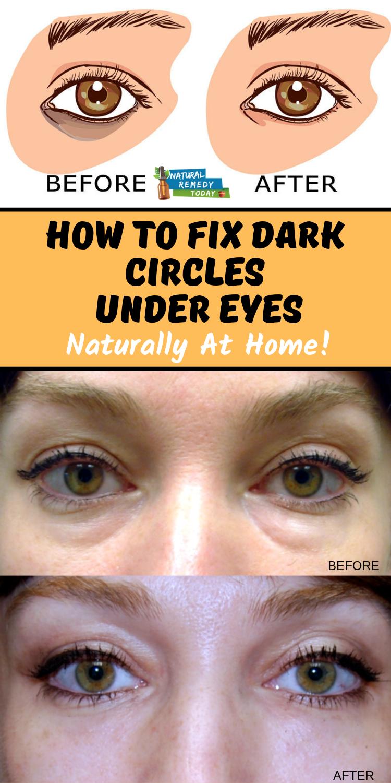 Dark Circles Under Eyes Dark Circles Under Eyes Causes Of Dark Circles Under Eyes How To Get Rid Of Remove Dark Circles Under Eyes Dark Circles Undereye