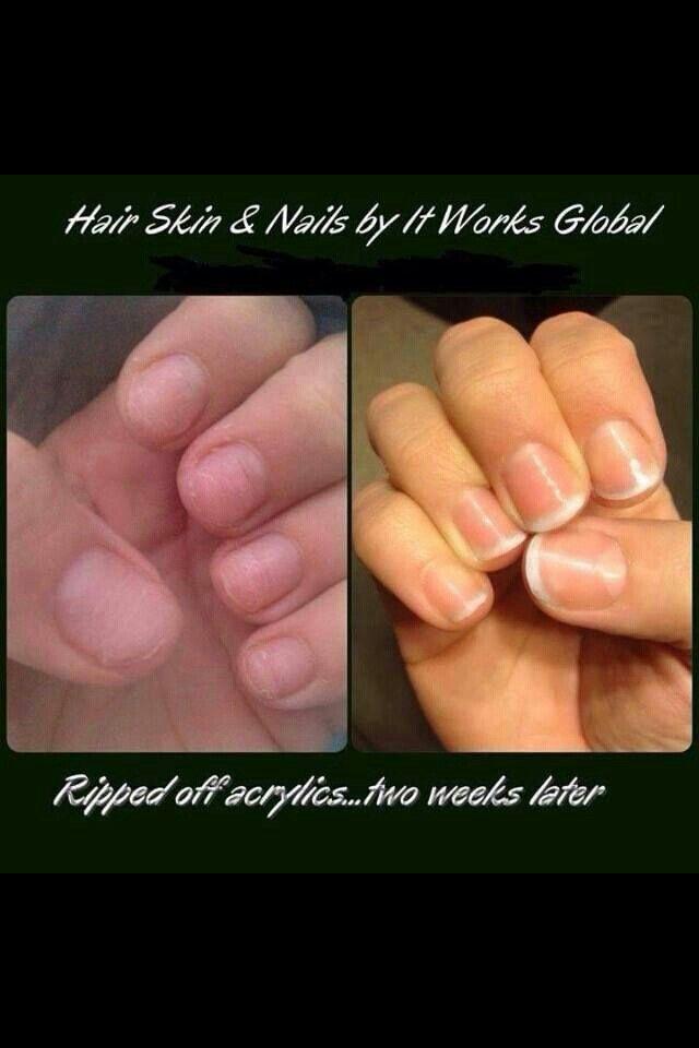 2 Weeks Of Hsn After Acrylic Nails Taken Off Healthy Nails Hair And Nails Hair Skin Nails