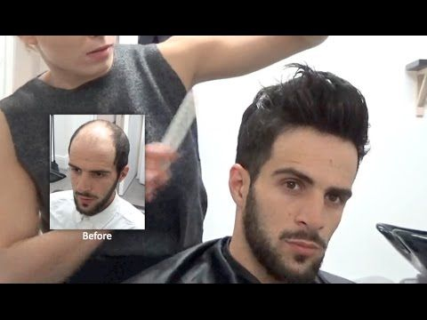 Hair Replacement FITTING VIDEO (Sam) – Hair loss, Baldness ...