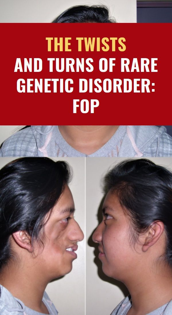 The Twists And Turns Of Rare Genetic Disorder: FOP ...