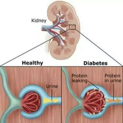 Diet to Lower Protein in Urine