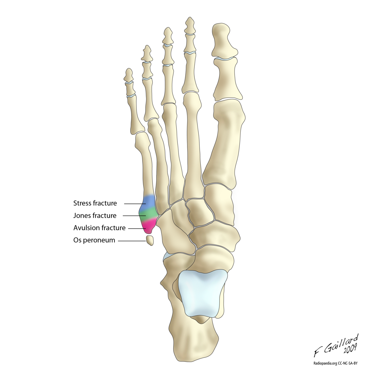 The Troubled High Arch Foot | Austin Foot And Ankle Specialists ...