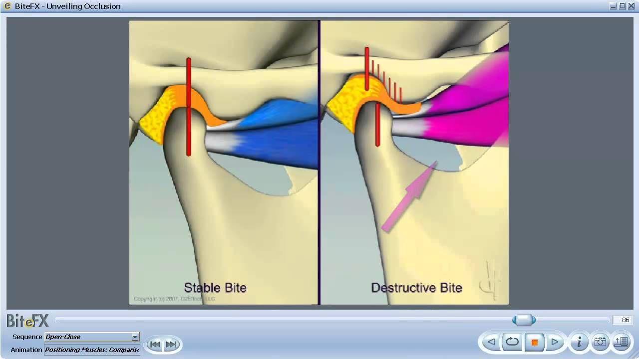 TMJ Disorders | TMJ/TMD pain | Pinterest | Chronic pain