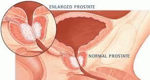 Prostate Vs G Spot
