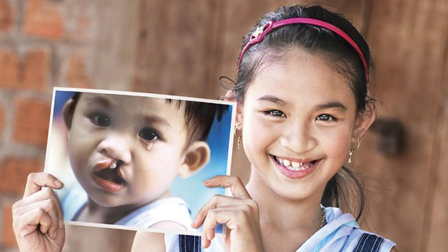 Operation Smile Celebrates 30 Years with Month-Long Mission