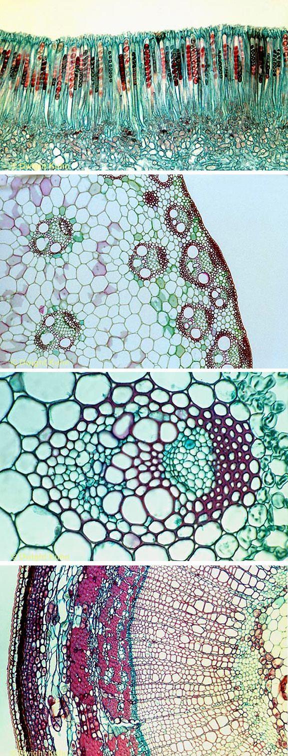 Microscopic plant cells