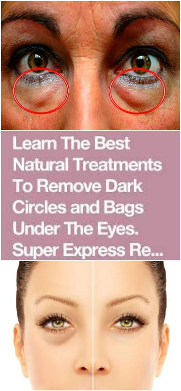 Learn The Best Natural Treatments To Remove Dark Circles