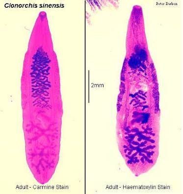 Clonorchis Sinensis Medical Laboratory Science Human Liver Medical Laboratory