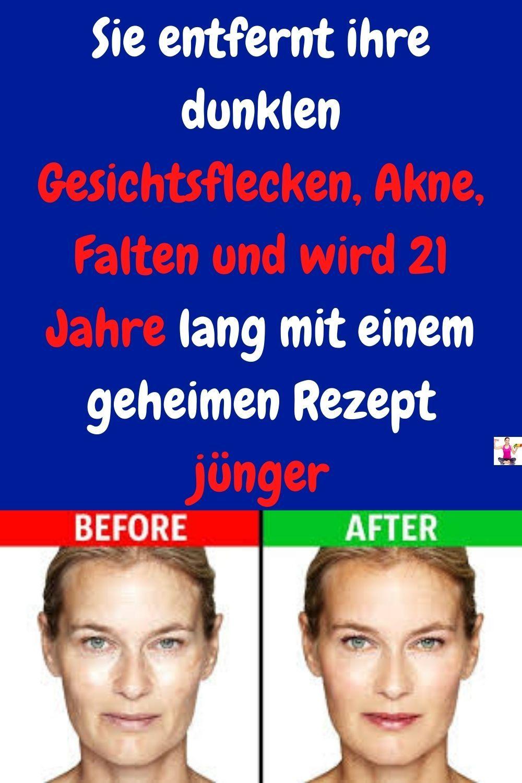 Sie Entfernt Ihre Dunklen Gesichtsflecken Akne Falten Und Wird 21 Jahre Einem Geheimen Rezept Jüng Ratgeber Gesundheit Hautpflege Tipps Gesundheit