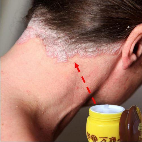 100% натуральный эффективный крем для лечения псориаза, зкземы ...