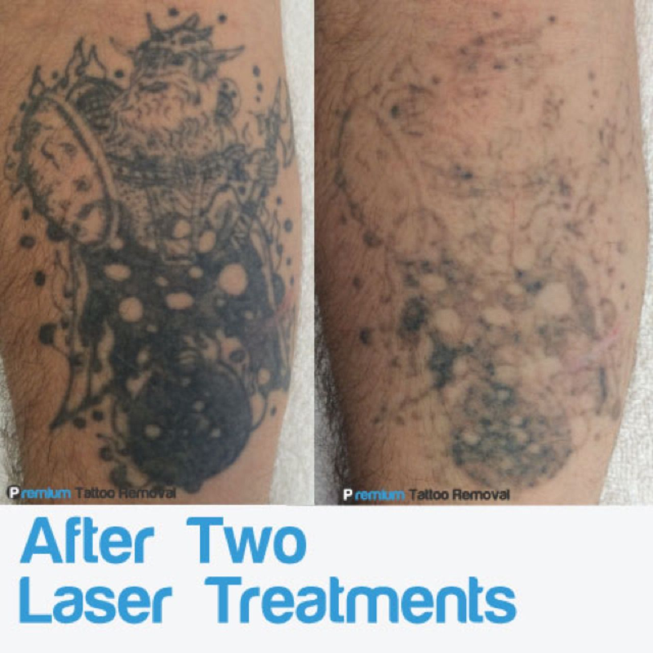After two treatments, this lower arm tattoo is showing