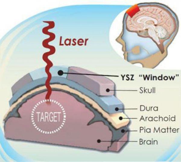 Implante transparente es una ventana craneal para monitorizar el cerebro y aplicar terapia con láser