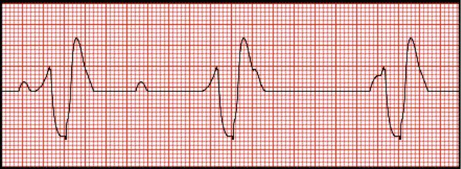 3rd Degree Heart Block Cardiovascular system, Heart