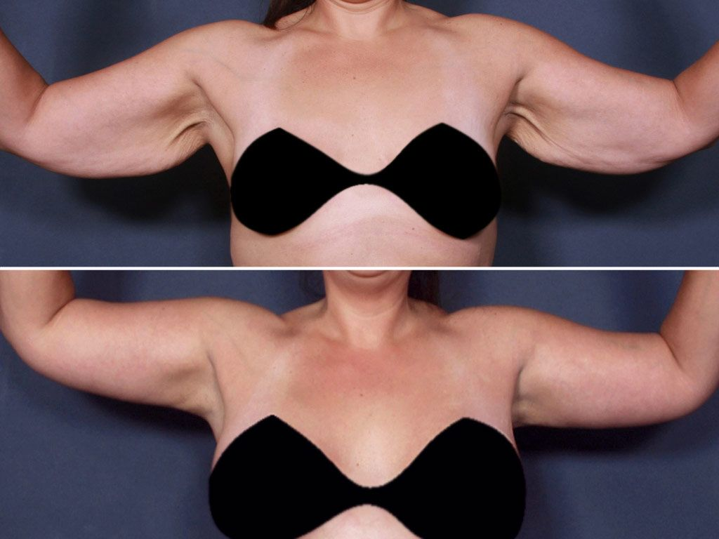 Before Amp Afters La Jolla Cosmetic Surgery Centre Plastic Surgery Cosmetic Surgery Elective Surgery