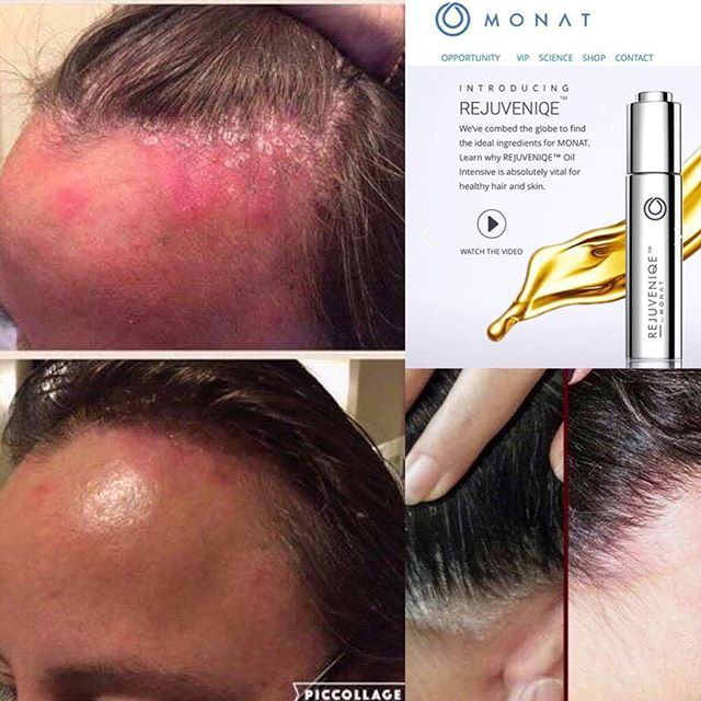 Know Anyone That Has Psoriasis Or Eczema Monat To The Rescue All