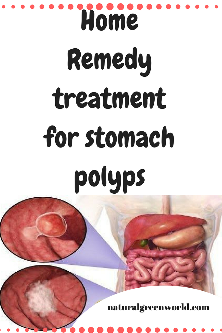 When We Have Stomach Polyps Then This Means That The Mass Of Tissues