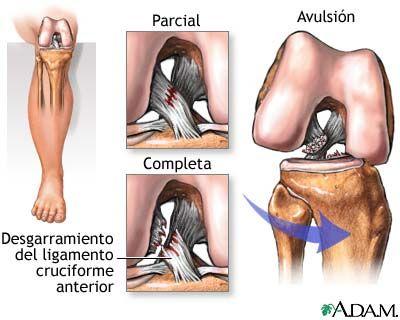 Ligamentos cruzados | Anatomía | Pinterest | Cruzado, Fisioterapia y ...