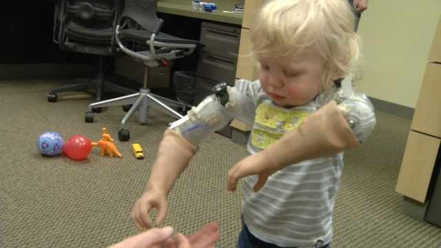 18 month old gets prosthetic arms  Portland, OR News