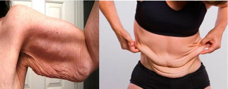 Reafirmar abdomen despues de adelgazar brazos