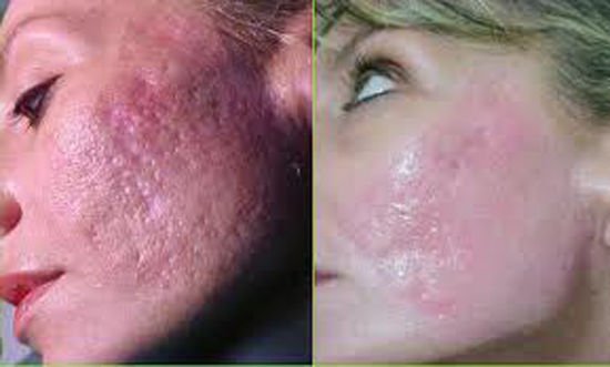 How to get rid of acne scars types of acne scars and solutions how to get rid of acne scars types of acne scars and solutions ccuart Choice Image