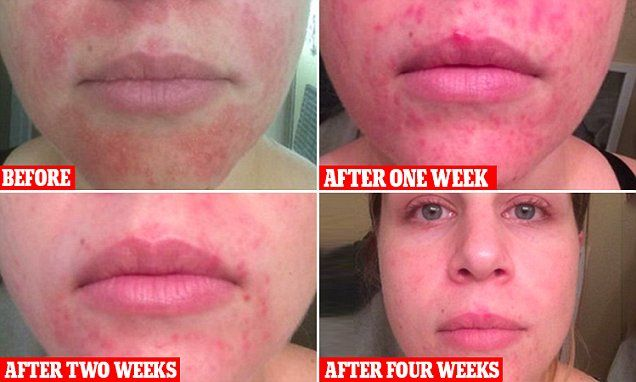 Woman claims that RAW HONEY cleared her acne | Skincare