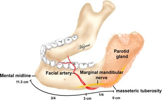 Bony Anatomic Landmarks to Avoid Injury to the Marginal Mandibular