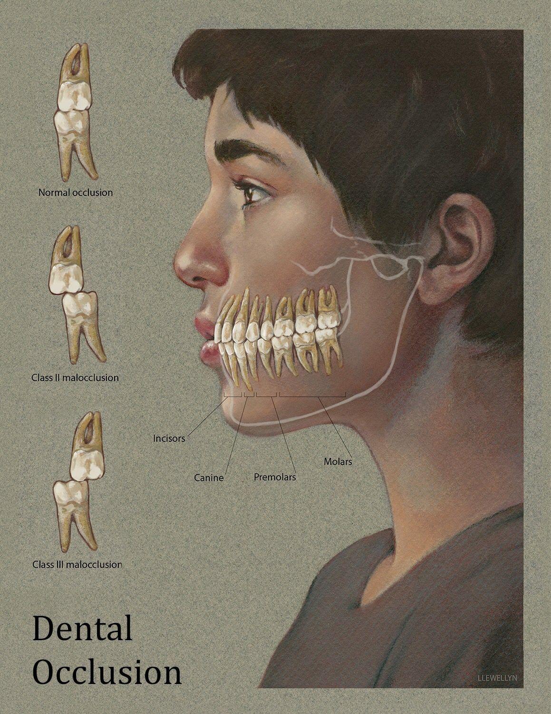 Pin By Lorena Ballon Santivanez On Goop Be Gone Dental Dental Dental Student Dental Hygiene School