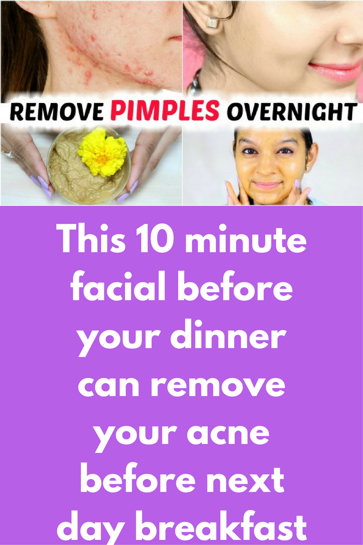 how to clear your acne in one day