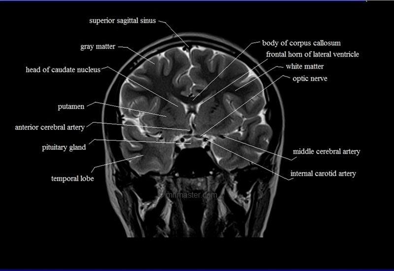 Mri Brain Coronal Cross Sectional Anatomy Image Mri Brain Brain Anatomy Mri