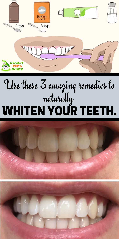 DIY- Homemade Teeth Whitener with Turmeric | IFB |Turmeric Teeth Before And After