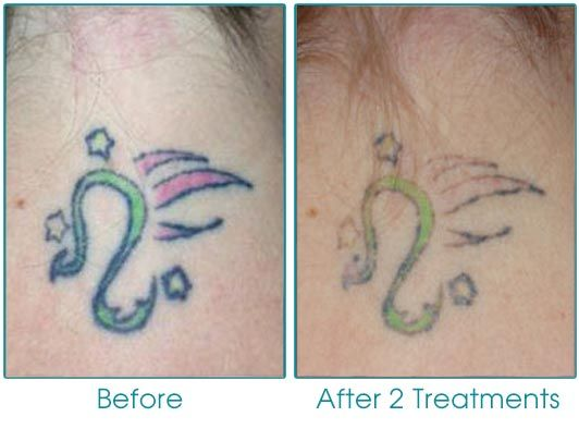 Laser Tattoo Removal (after 2 treatments) www.travisshawmd.com ...