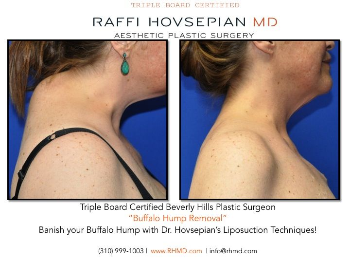 Take A Look At This Great Before And After Of A Patient Who Had A Buffalo Hump Another Amazing Result Performe Buffalo Hump Neck Liposuction Plastic Surgery