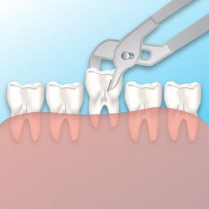 #Dental_Extractions_Snellville _GA Snellville Dentist ...