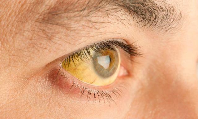 Народен лек со лук и лимон за лекување хепатитис