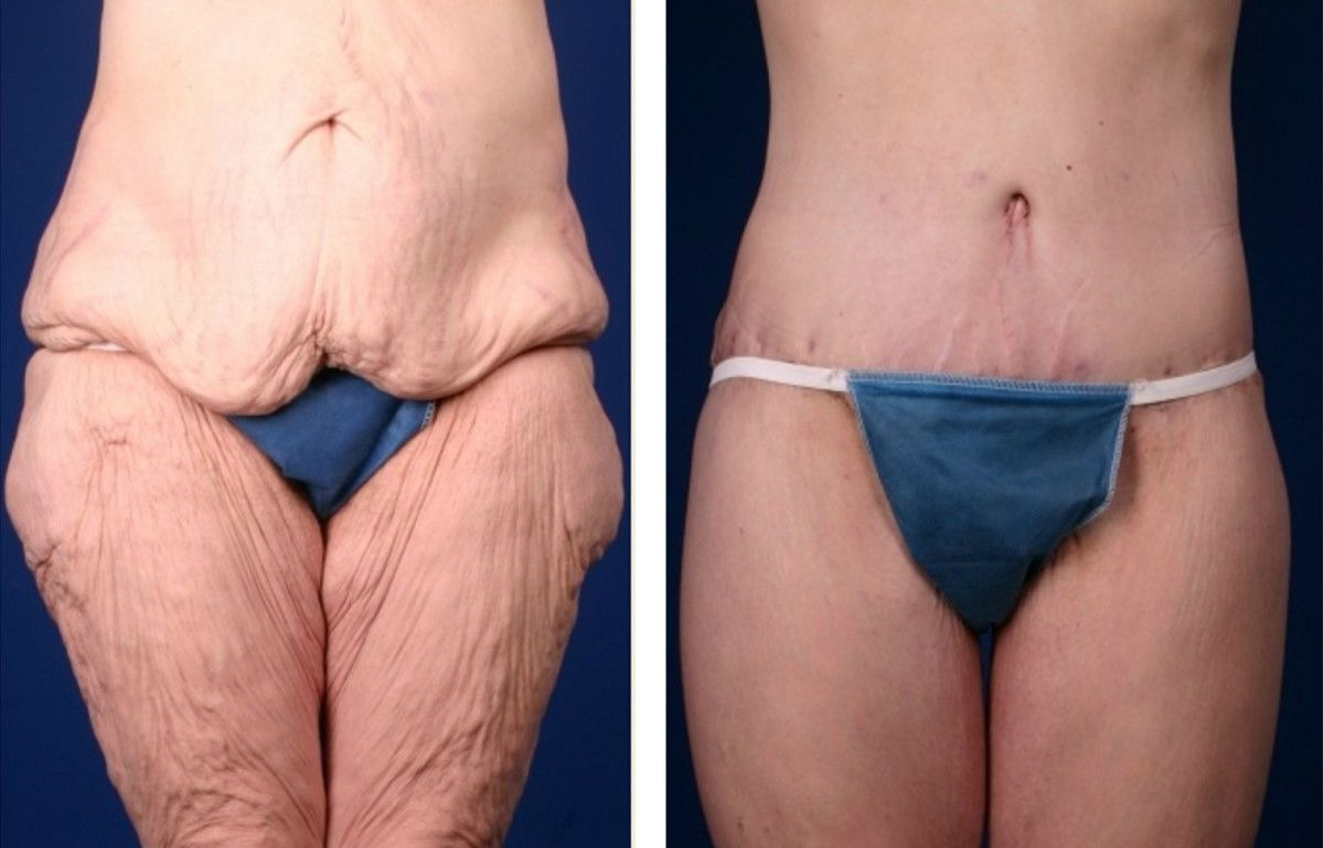 Determining Excess Skin After Weight Loss My Bariatric Life