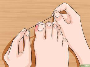 Allevia il dolore incarnito dell'unghia del piede