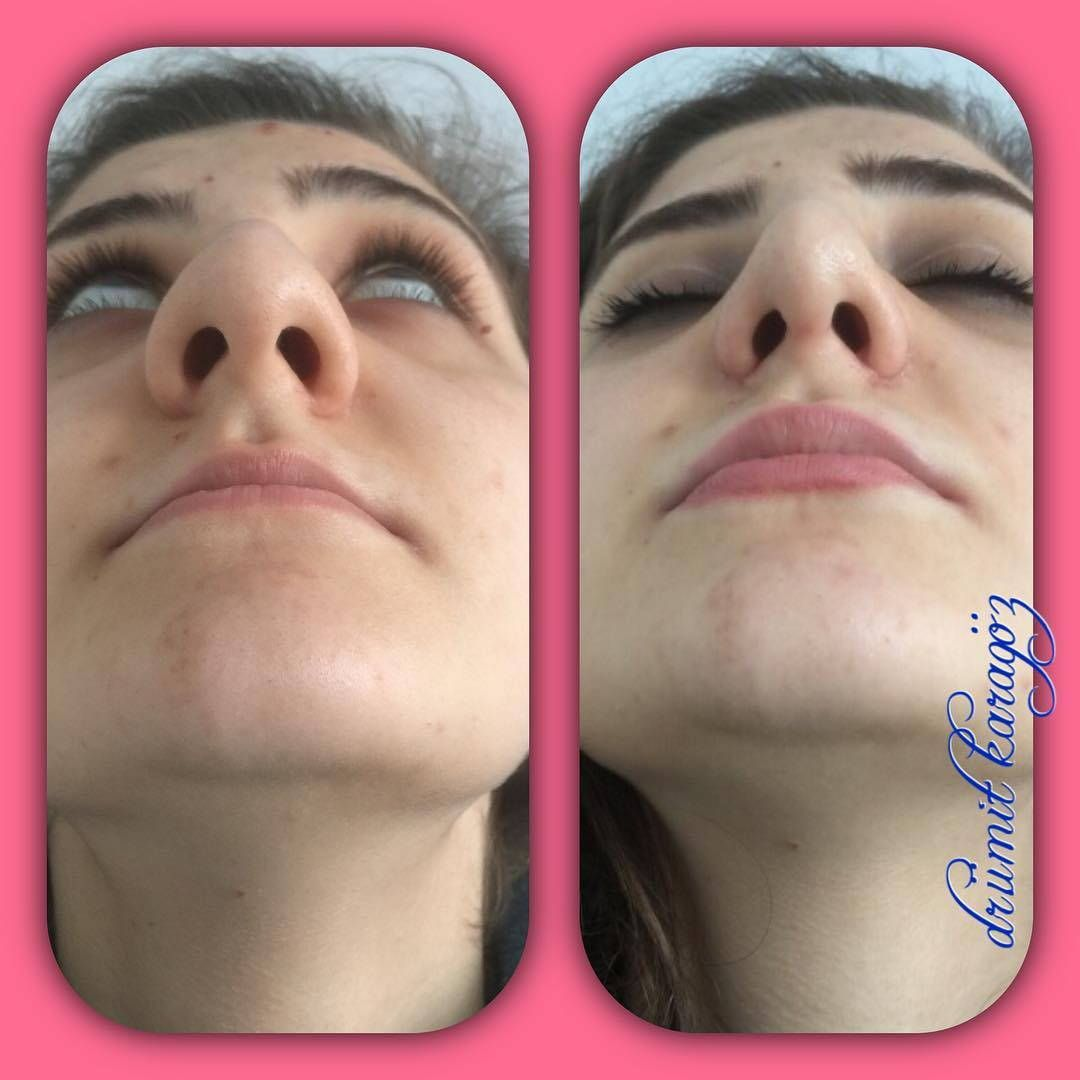 Bulbous Rhinoplasty Before And After 2 Rhinoplasty Before And After Rhinoplasty Rhinoplasty Surgery