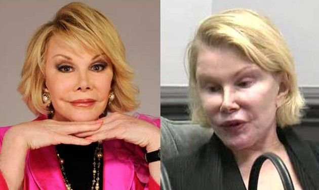 Joan Rivers worst plastic surgery pictures | Oh! My God