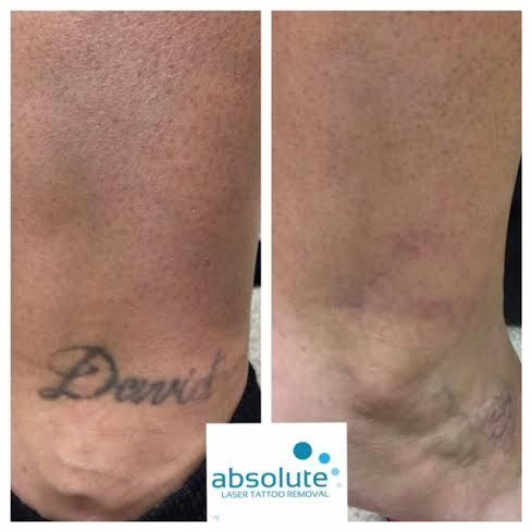 Four Treatment On This Ankle Tattoo And David Is Gone Forever Absolute Laser Tattoo Removal