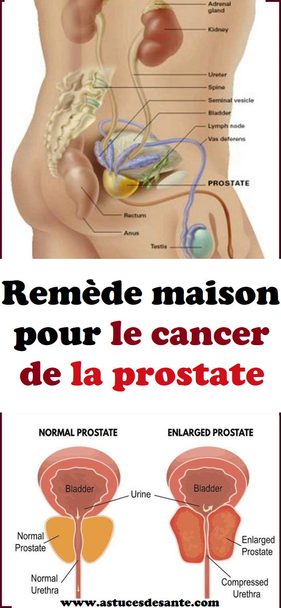 Comment Avoir Le Cancer De La Prostate