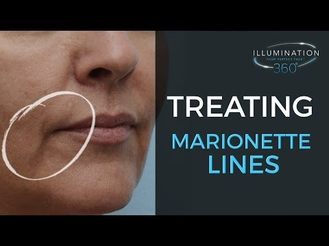 How to remove Marrionette lines, sad mouth corners at The Sugar Box