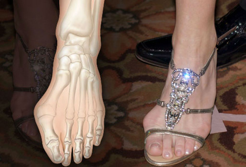 75493539a7 Celebrities with hammer toes-11 | CELEBRITIES AND THEIR LIFE STYLE ...
