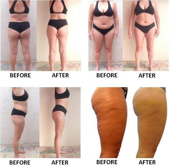 BioPromise Slimming Opaque Tights is part of Weight loss workouts - BioPromise Slimming Opaque Tights sold by Kupid FashOn  Shop more products from Kupid FashOn on Storenvy, the home of independent small businesses all over the world