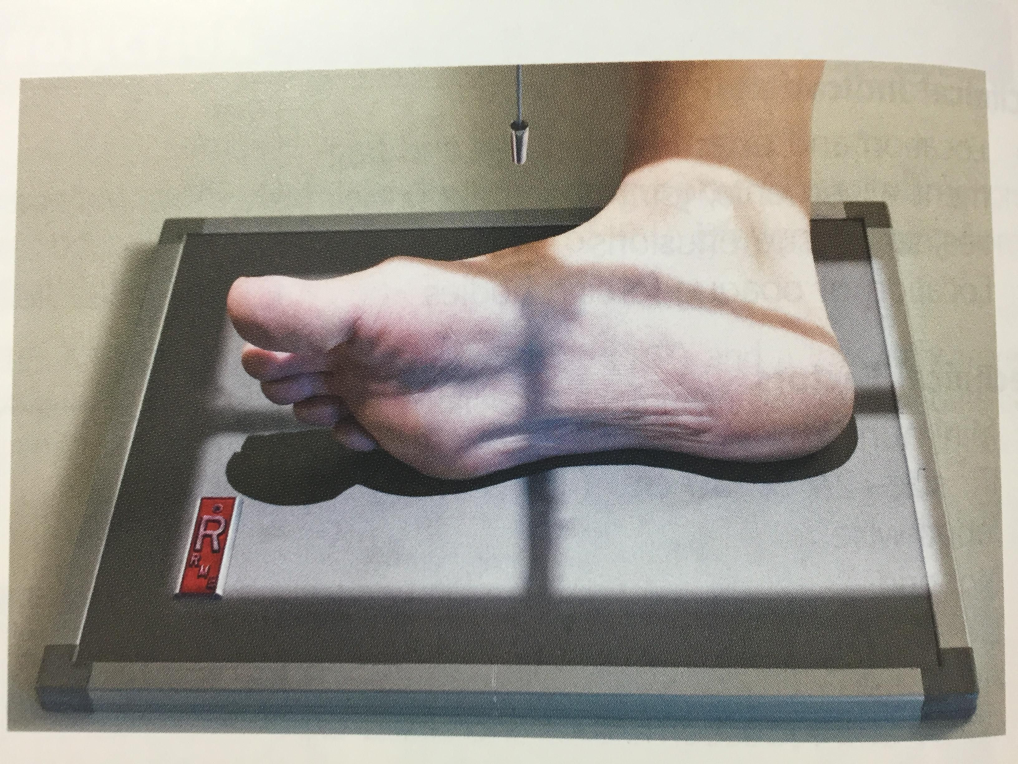 Positioning For Foot Lateral Xray