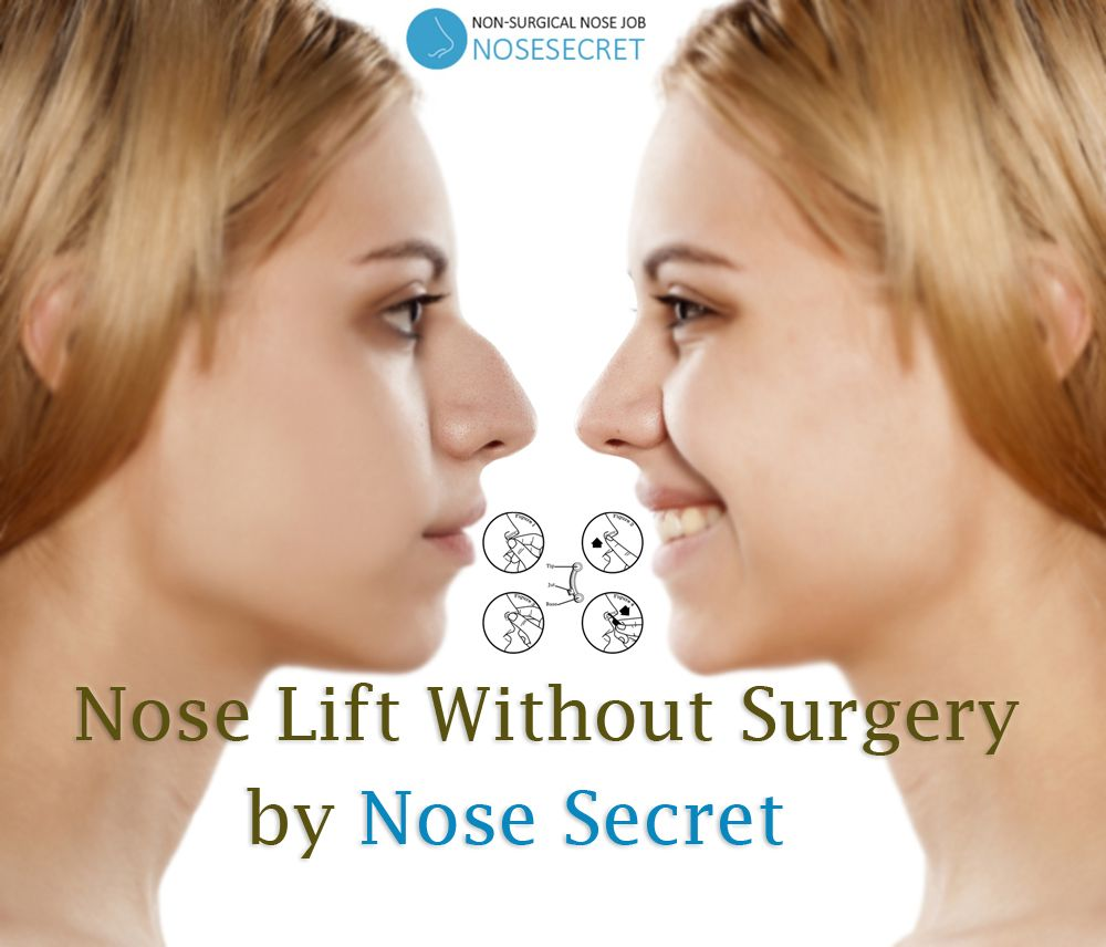 Nose Lift Without Surgery Are you still worried thinking