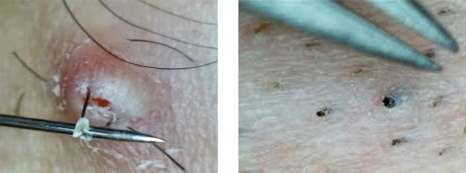 Removing ingrown hair ...