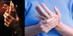Formigamento e dor e amortecimento nas mãos e geralmente você já pensa de que está com problemas cardíacos. Segundo pesquisas este sintoma não tem nada a ver com a circulação e sim com fadiga, depressão, sistema...